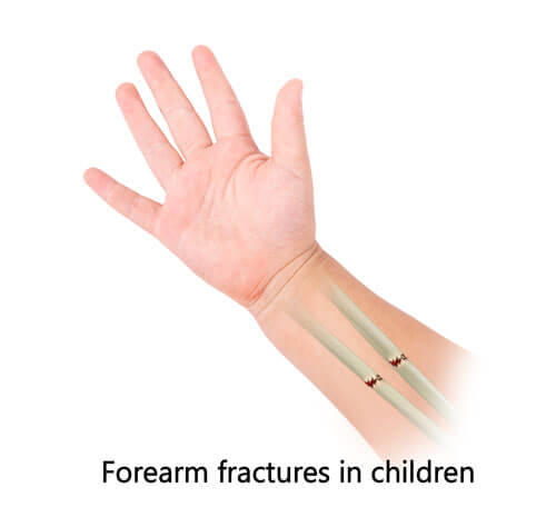 Treatment for Forearm Fractures in Children