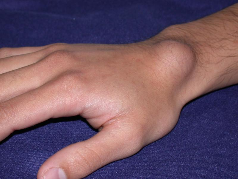 Treatment for Ganglion Cyst