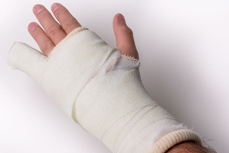 Treatment for Hand Fractures