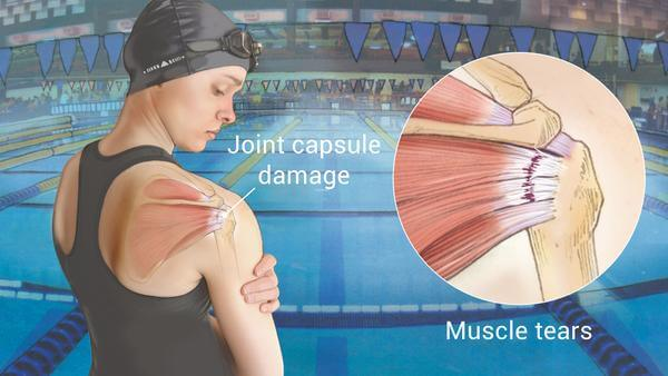 Treatment for Shoulder Impingement / Rotator Cuff Tendinitis