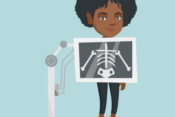 Young african-american woman during chest x ray procedure. Smiling woman with a x ray screen showing her skeleton. Female patient visiting a roentgenologist. Vector cartoon illustration. Square layout